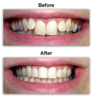Before & After PowerProx Short Term Braces Colmar PA